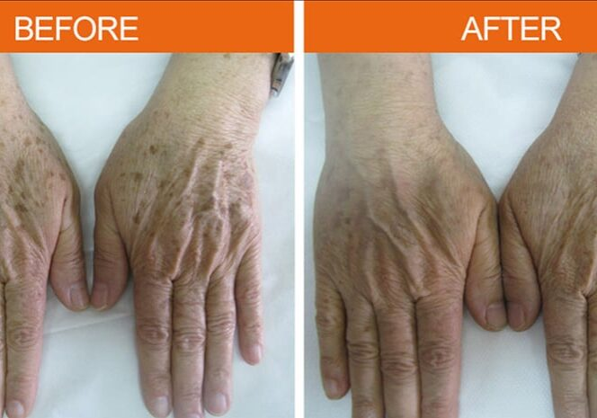 Before-After Age Spots - Hands
