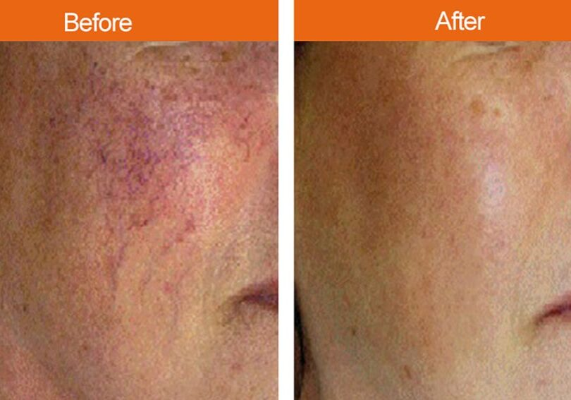 Before-After Hyperpigmentation